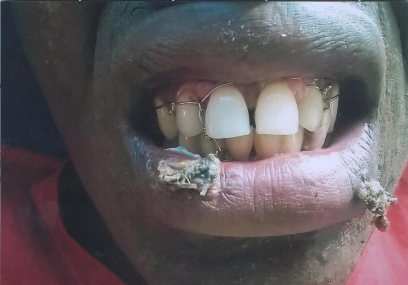 The Month/ Teeth of Stanly Ifeanyi Okoye