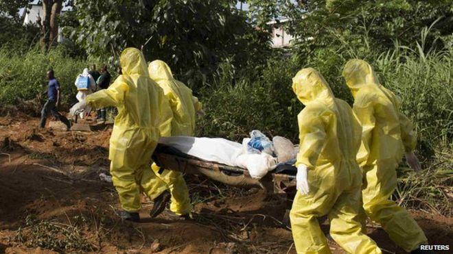 Lassa Fever kills One In Edo