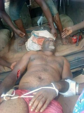 Man Stabs Brother To Death In Anambra