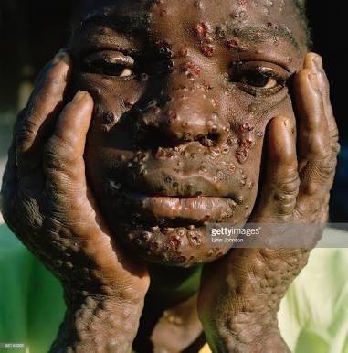 Immunization: Anambra Records Low Turnout Over Monkey Pox Rumor