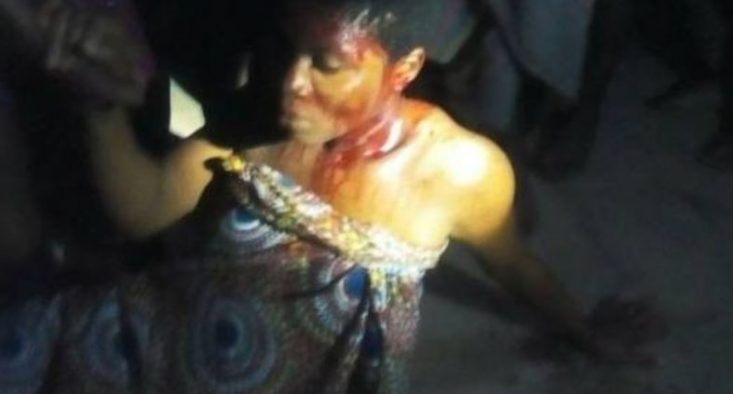 Images: Rapists Attack All Girls Secondary School In Abia Many Students Injured