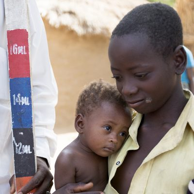 FG Restates Commitment To Eliminate Trachoma In Nigeria