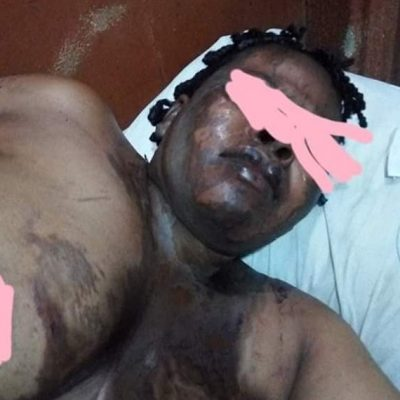 Man baths wife with acid in Anambra