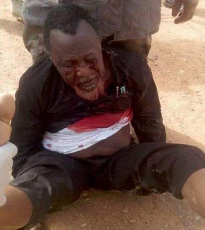 Sheikh Zakzaky's Detention: Nigeria's Foreign Minister Goofed In New York