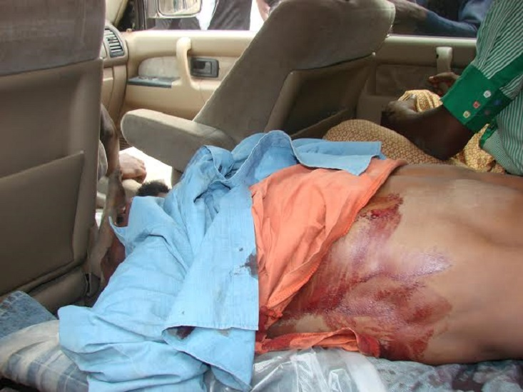 Buhari Government's Torture, Murder Of Pro-Biafrans, Too Gruesome For FaceBook