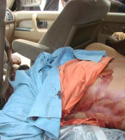 The Mass Murder of Unarmed Civilians In Aba; an Attack on Human Rights and Democracy