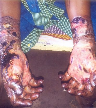 Cruel: Father Cuts Off 11 Year-Old Son's Hands
