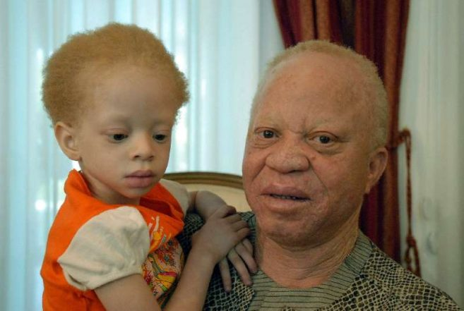 Outcry in Mali after albino child beheaded in 'ritual' murder