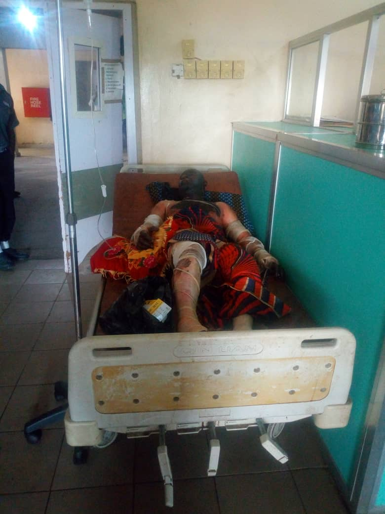 Benue Tanker Fire: 37 Dies, Over 100 Victims In Hospitals